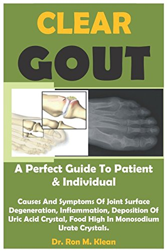 1 Glucosamine - CLEAR GOUT: A Perfect Guide To Patient And Individual (Gout Cause & Solution 1)