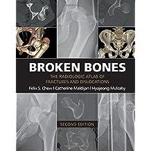 Broken Bones: The Radiologic Atlas of Fractures and Dislocations