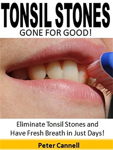 Tonsil Stones Gone for Good: Eliminate Tonsil Stones and Have Fresh Breath in Just Days! (Get Rid Of Tonsil Stones For Good)