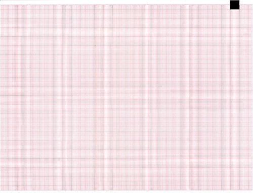 ECG EKG Paper EDAN SE-12 Paper Thermal Recording Sheets 3 Packs per Case