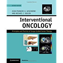 Interventional Oncology: Principles and Practice of Image-Guided Cancer Therapy