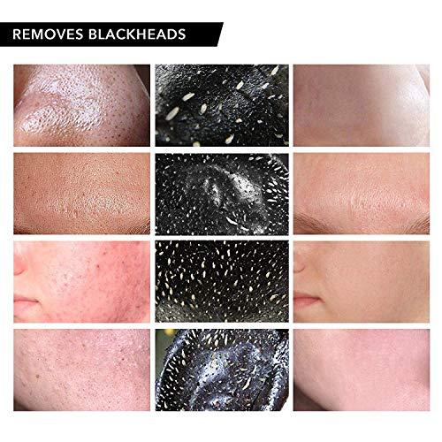 Blackhead remover mask 1