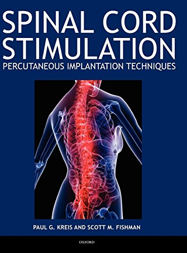 Spinal Cord Stimulation Implantation: Percutaneous Implantation Techniques