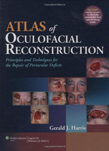 Atlas of Oculofacial Reconstruction: Principles and Techniques for the Repair of Periocular Defects