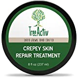 TreeActiv Crepey Skin Repair Treatment   Anti-Aging   Anti-Wrinkle   Organic Ingredients for Face, Neck, Chest, Legs & Arms   Hyaluronic Acid, Alpha Hydroxy Fruit Acids, Honey, Shea, Castor