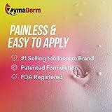 ZymaDerm Natural Molluscum Contagiosum Treatment