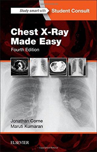 Chest X-Ray Made Easy, 4e, by Jonathan Corne MA  PhD  MB BS  FRCP, Maruti Kumaran MD  FRCR