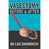 Vasectomy - Before and After