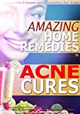 ACNE CURE: Amazing Home Remedies for Acne, Symptoms Causes and Remedies For Acne, Natural Remedies for Acne, How To Prevent Acne, What is Acne? Acne Advice, Types of Acne