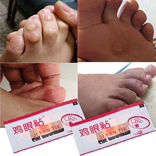 Zobeen 6Pcs Foot Patch Corn Treatment Removal Calluses Medical Plaster Health Care New by zobeen (Image #2)