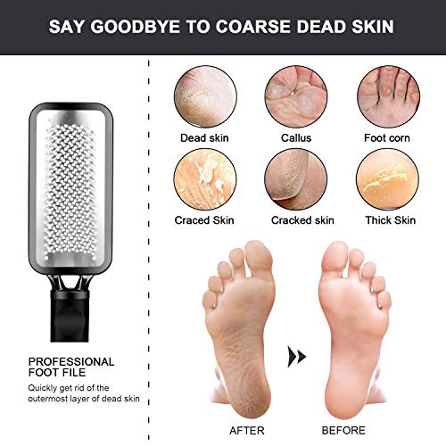 DOMEI 3PCS Stainless Steel Foot Filer for Dead Skin, Double Sided Foot File Callus Remover, Professional Foot Files Pedicure Kit