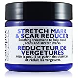 #9: Carapex Stretch Mark & Scar Reducer Cream - 98% Natural, for Pregnancy Marks, Weight Loss Marks, Tightening, Firming, Unscented with Shea Butter, 4oz