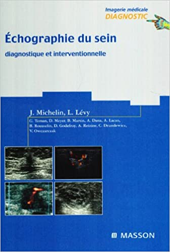 Telecharger Un Livre De Google Books Mac Echographie Du Sein