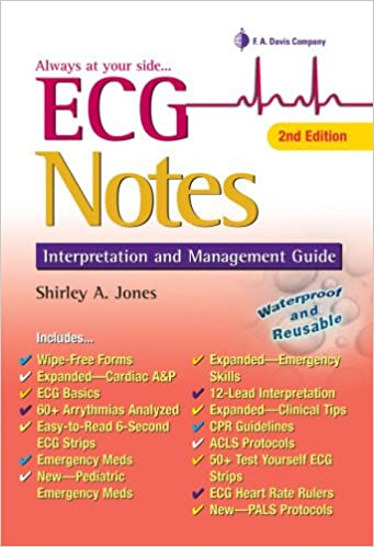 Ecg Notes Interpretation And Management Guide Shirley A Jones