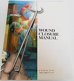wound closure manual johnson johson company editor amazon com rh amazon com wound closure manual 1994 ethicon wound closure manual upenn