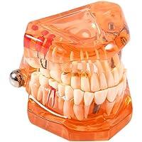 OKBY Modelo Dental 3D - Diente de la Enfermedad movible del Color Anaranjado 1pcs, Modelo de enseñanza de los Dientes de la investigación