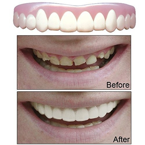 Imako Cosmetic Teeth for Women 1 Pack. (Small, Bleached) Uppers Only- Arrives Flat. Fit at Home Do it Yourself Smile Makeover! by Imako (Image #1)
