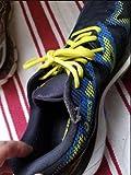 Poor Shoe Fabric Overlay