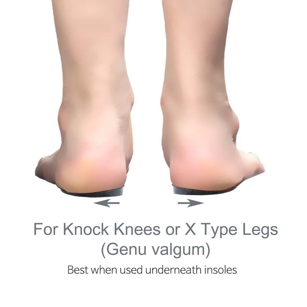 Knock-Knees Bow Legs Correction O/X