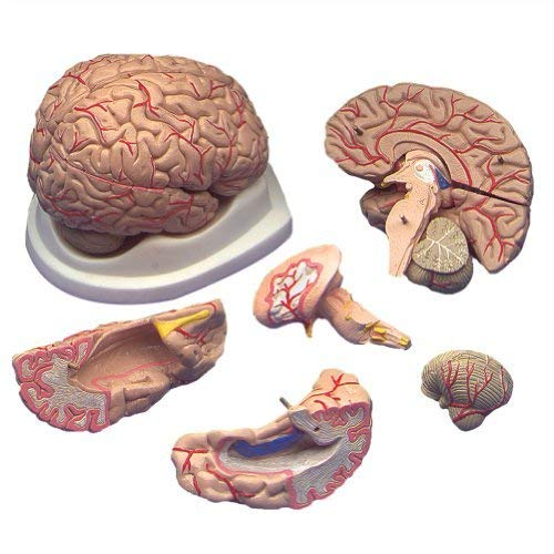 (Budget Brain with Arteries Model )