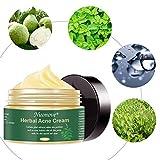 Acne Scar Remover Cream, Acne Treatment Cream, Acne Scar Cream, Acne Cream for Face, Balance Water And Oil, Perfect For Acne Scar Removal, Spots, 100g