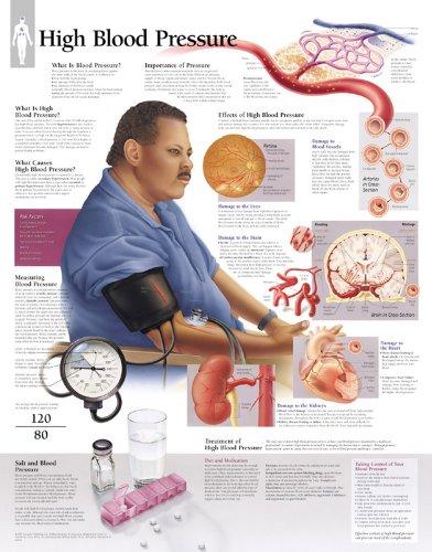 High Blood Pressure chart: Wall Chart