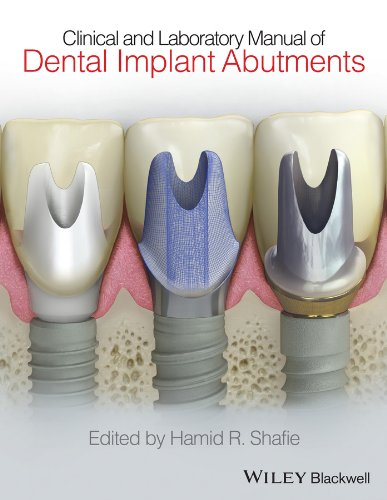 Download Clinical and Laboratory Manual of Dental Implant Abutments Pdf