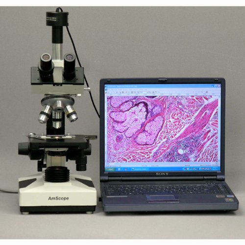 Halogen Illumination with Rheostat WF10x and WF16x Eyepieces AmScope T400A-M Digital Compound Trinocular Microscope Sliding Head Includes 1.3MP Abbe Condenser 40X-1600X Magnification High-Resolution Optics Double-Layer Mechanical Stage Brightfield