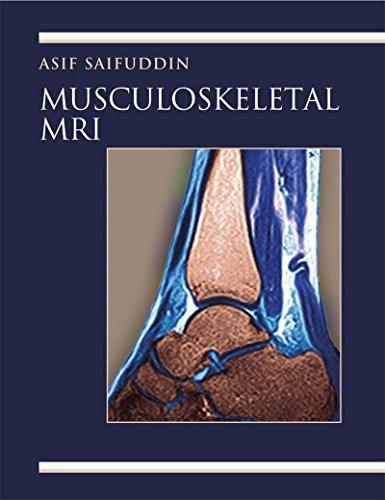Musculoskeletal MRI (Hodder Arnold Publication) Pdf
