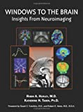 Windows to the Brain : Insights from Neuroimaging, Robin A., M.D. Hurley, Katherine H., Ph.D. Taber, 1585623024