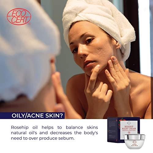 51hT31DXCKL - O Naturals Organic Advanced-Repair Hydrating Rosehip Oil Night Face & Neck Cream. Face Moisturizer. Anti-Aging Moisturizes Dry Skin Anti-Wrinkles Reduce Scars Boost Collagen Vitamin E Non Greasy 1.7oz
