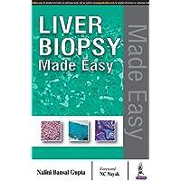 Liver Biopsy Made Easy