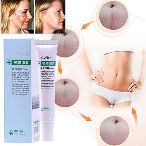 Iusun Acne Removal Cream, 1Piece Soft Cream Freckle Cream Extract Acne Removal Scars Marks Treatment Facial 20g (White)