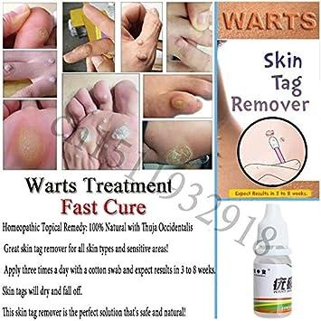 Forbestest 10ml Body Warts Cream Skin Tag Remover Foot Corn