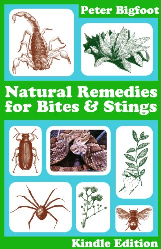 Natural Remedies for Bites and Stings