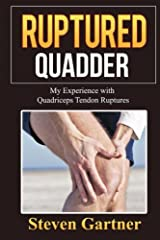 This is my personal story about my experience with suffering two instances of a very serious leg injury know as Bilateral Quadriceps Tendon Rupture or Tear. In 2007 I fully ruptured my right quadriceps tendon from a jet skiing accident. Fast fast for...