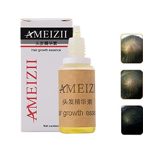Hair Growth Essence Hair Loss Treatments Hair Loss Stop Fast Hair Growth Products RegrowGinger Genseng Raise Dense Hair 20ml
