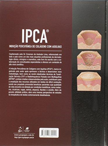IPCA. Indução Percutânea de Colágeno com Agulhas