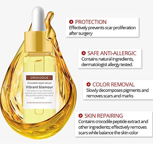 Amazon Com Vibrant Glamour Crocodile Repair Serum Anti Scar Oil With Herbal Extract Beauty