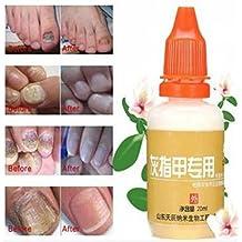 20ML Onychomycosis Nursing Leuconychia Ringworm Of Nail Repair Liquid by Abcstore99