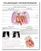 Pulmonary hypertension e chart: Full illustrated
