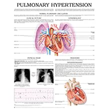 Pulmonary hypertension e chart: Full illustrated