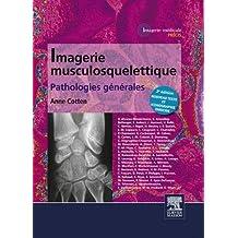 Imagerie musculosquelettique : pathologies générales (French Edition)