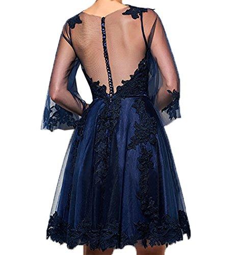 Charmant Brautmutterkleider Damen Knielang Spitze Dunkel Blau Kleider Jugendweihe Kurzes Ballkleider Abendkleider Partykleider BCrBwqx