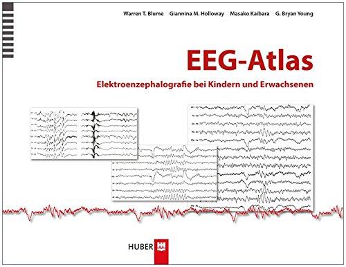 EEG–Atlas: Elektroenzephalografie bei Kindern und Erwachsenen