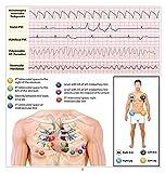 EKG Pocket Card