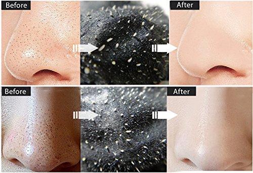 Vassoul Blackhead Remover Mask, Charcoal Mask - Deep Cleansing Blackhead Peel Off Mask, Black Mask for Men & Women