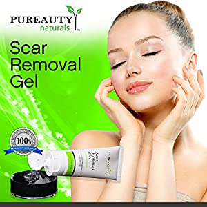 Scar Removal Gel – Advanced Scar Treatment (Double Sized) Help Remove New and Old Scars – Made in USA With Natural Ingredients Including Comfrey Root and Aloe. Help Make Your Scars Go Away!