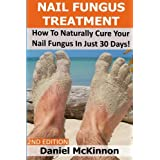 Nail Fungus Treatment: How To Naturally Cure Your Nail Fungus In Just 30 Days (2nd Edition)