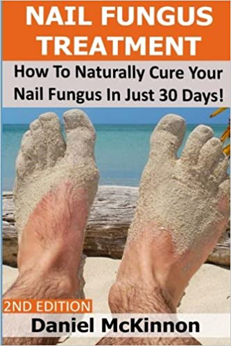 Nail Fungus Treatment: How To Naturally Cure Your Nail Fungus In ...